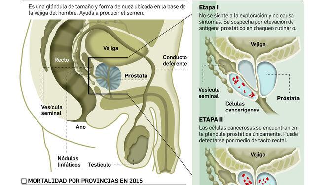 Crona prostatitis ru