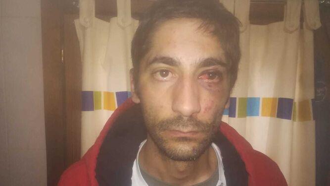 Un hombre denuncia una agresión por parte de la Policía Nacional por su ideología.